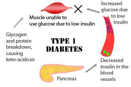 Type-1-Diabetes-1