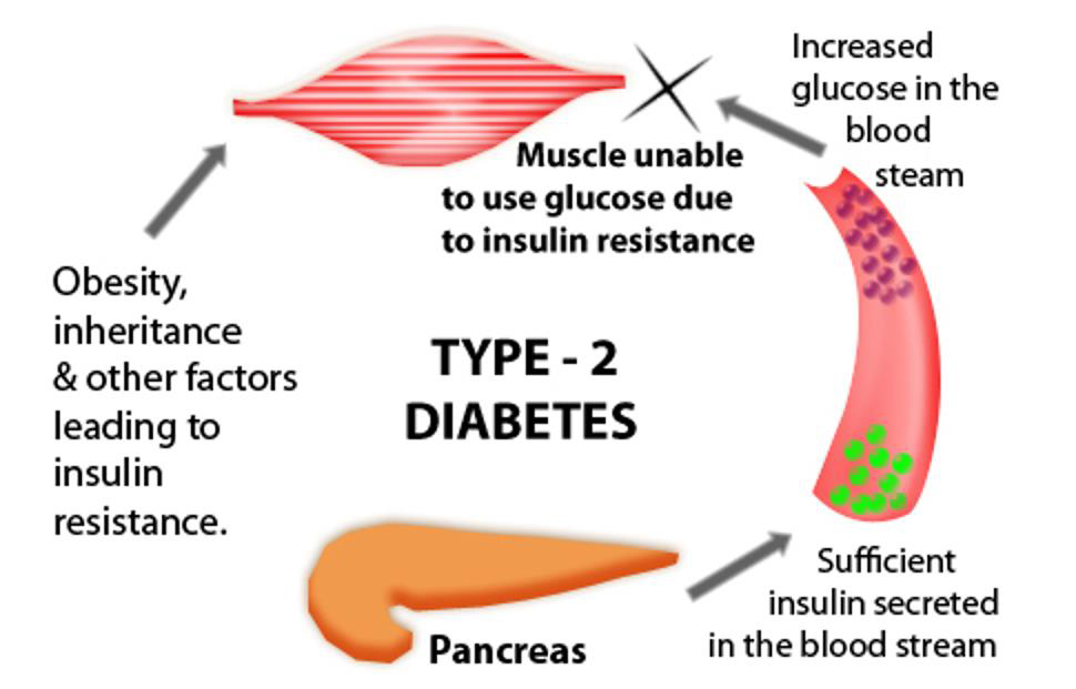 an introduction to type one diabetes causes and treatment Chapter 1 introduction to diabetes  the type and amount of carbohydrate eaten one of the earliest descriptions of a low-carbohydrate diet was by .
